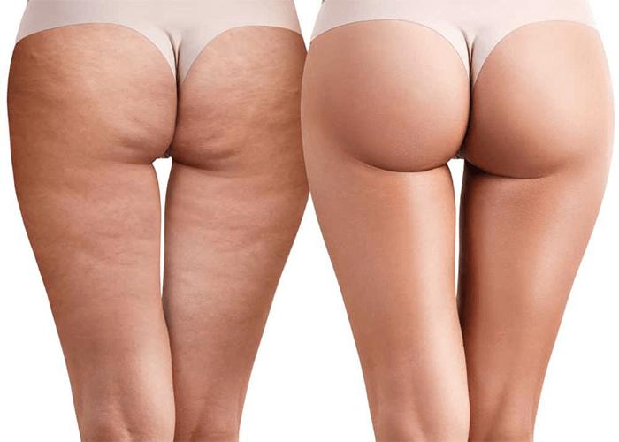 Что такое целлюлит у женщин