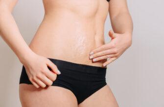 Как избавиться от растяжек на коже
