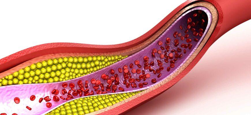 Что такое холестерин и чем он опасен для человека