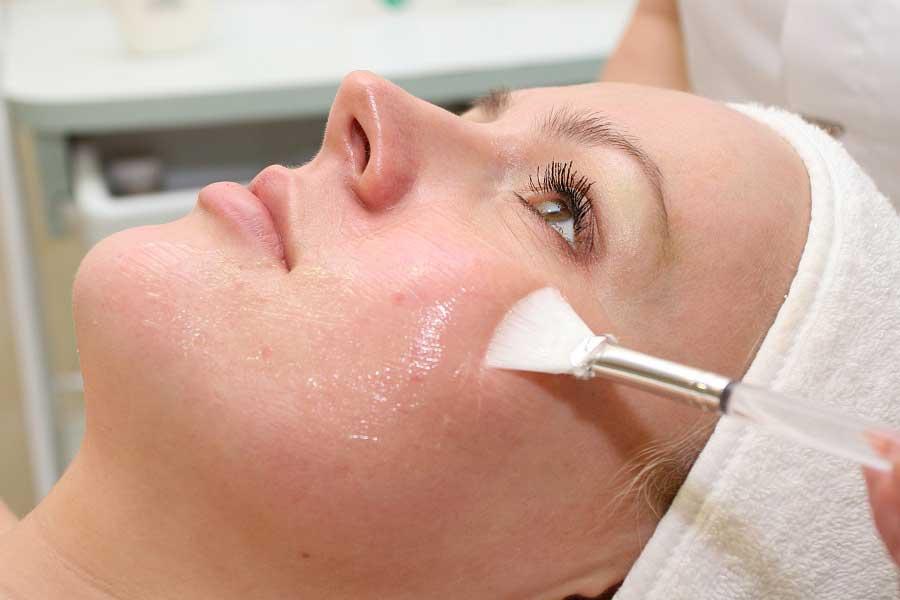 Очищение лица с помощью кислот