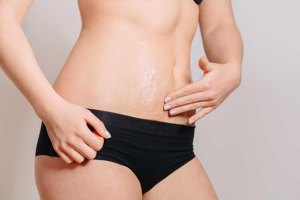 Лечение растяжек на коже в домашних условиях