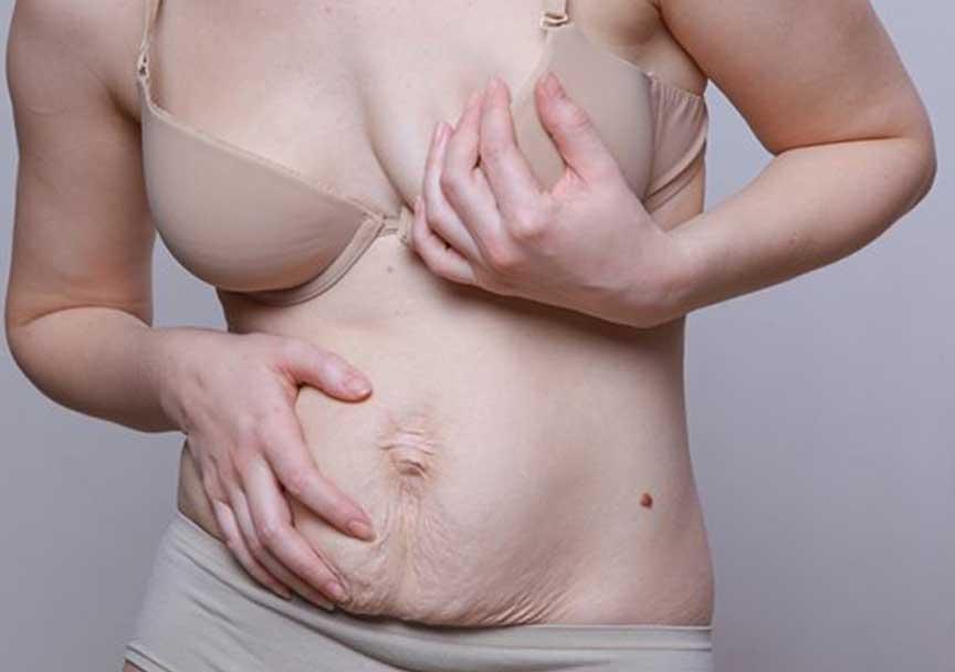 Как подтянуть кожу живота после родов в домашних условиях