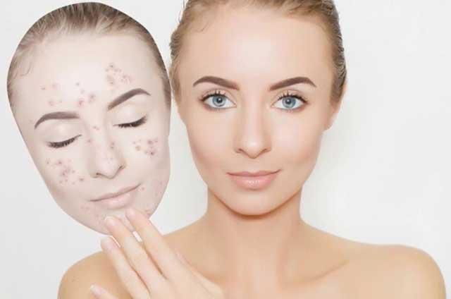 Как избавиться от чёрных точек на лице