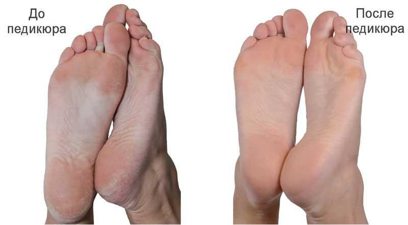 Уход за ногами подготовка к педикюру