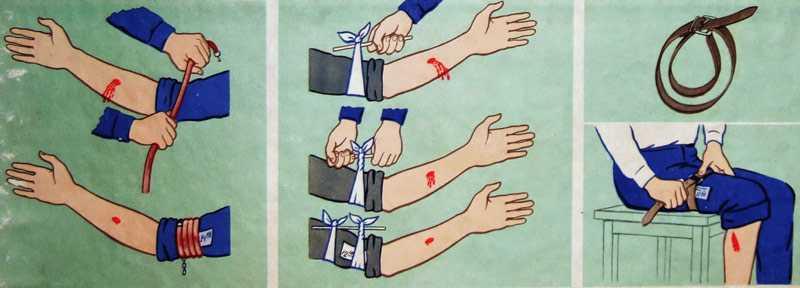 Как наложить жгут при кровотечении