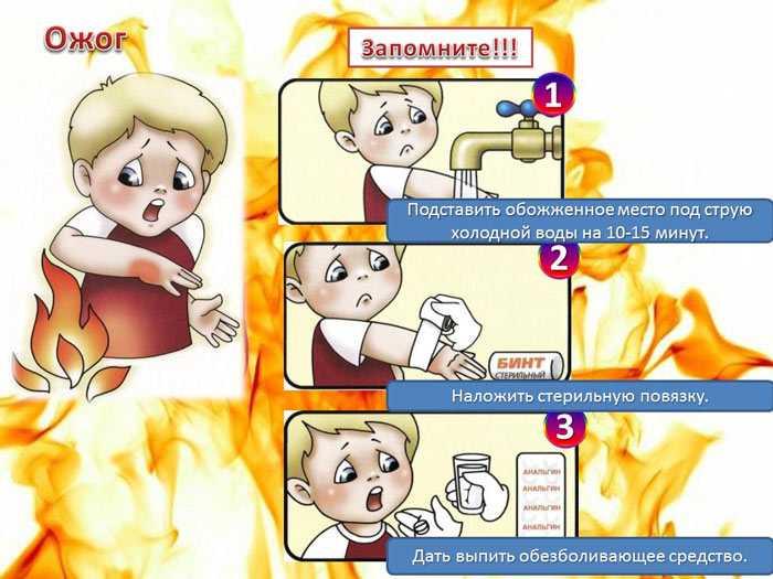 Первая помощь детям при ожоге